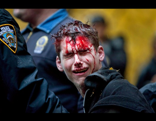 gty_bloodied_occupy_wall_street_protester_ll_111117_ssh